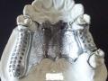 3D metal printed dental piece