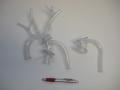 3D Printed aorta model