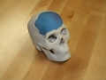 3D Printed skull model with cranial implant prototype