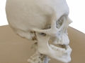 thumbs MBH EMS Skull 3 Medical